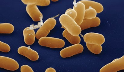 Post-Tranplant UTI Pathogens Shift Over Time