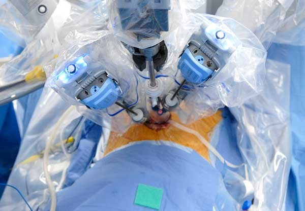 Radical Prostatectomies Mostly Performed Robotically