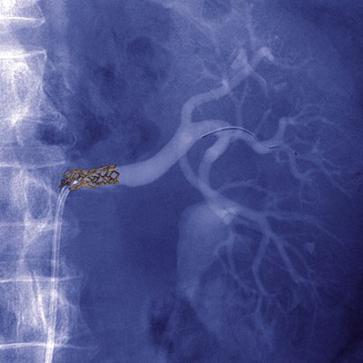Cipro Not Better for UTI Prophylaxis After Transplant With Stent