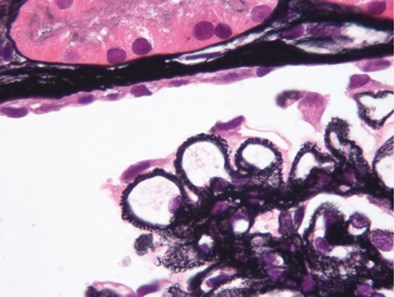 Potential Target for Fibrillary Glomerulonephritis ID'd