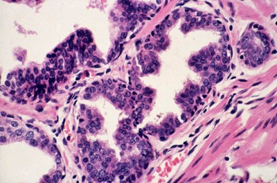 Researchers debate if cellular changes within the prostatic acini lead to cancer.