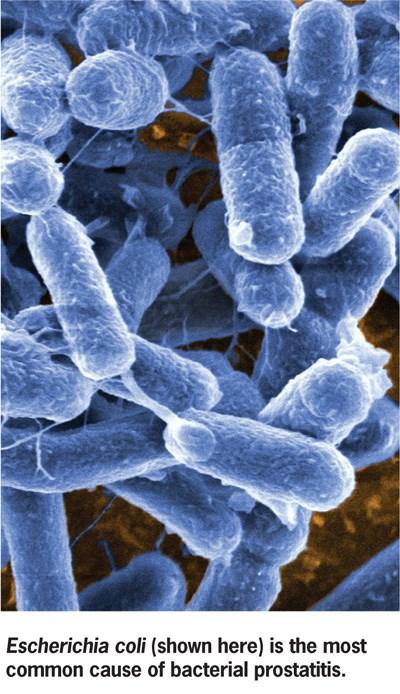 Bacteremia Worsens Kidney Transplant Outcomes