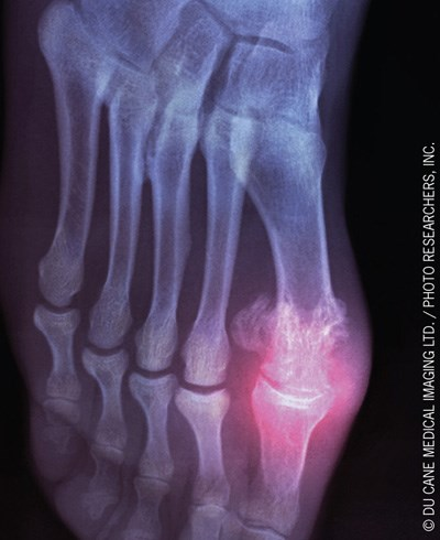 Clinicians should be aware of these uncommon radiograph findings.
