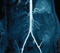 The Management of Patients After Renal Transplantation