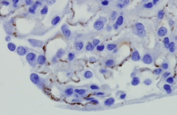 TSC-Related Pediatric Renal Tumors Respond to Everolimus