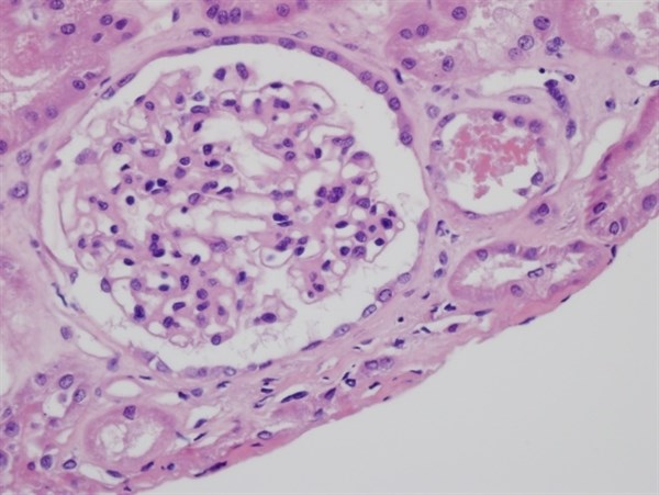 Percutaneous Biopsy Accurately Diagnoses Urothelial Carcinoma