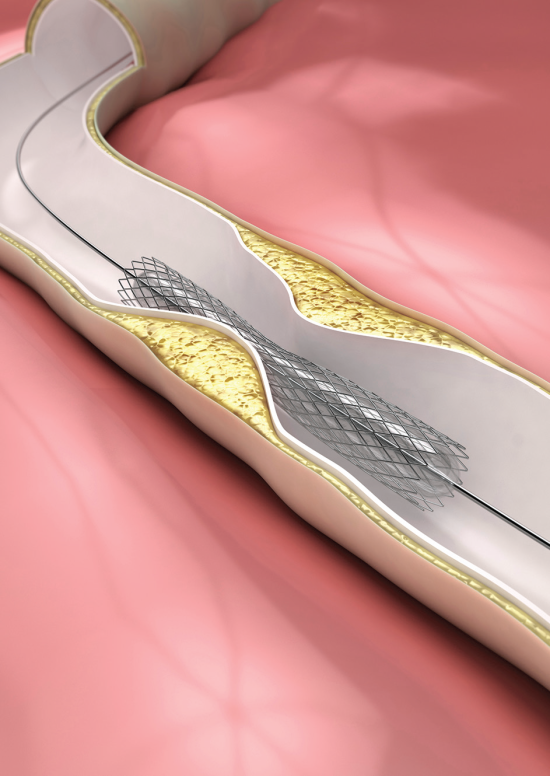 Drug-Eluting Stents Not Superior for Survival, CV Events