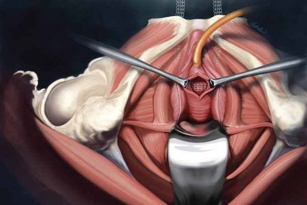 A woman's age may not matter with midurethral sling surgery.