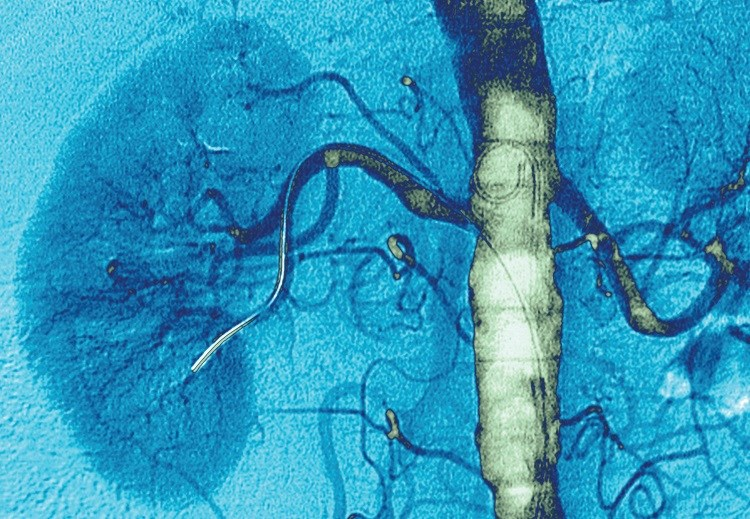 Stents May Help Some Renal Artery Stenosis (RAS) Patients