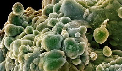 'Jekyll & Hyde' Molecule Could Lead to Aggressive Prostate Cancer (PCa)