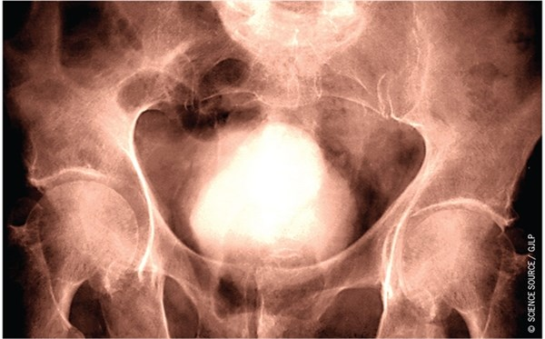 Prostate Cancer Aggressiveness May Be Underestimated