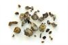 Kidney Stone Burden Predicts Chronic Kidney Disease (CKD) Risk