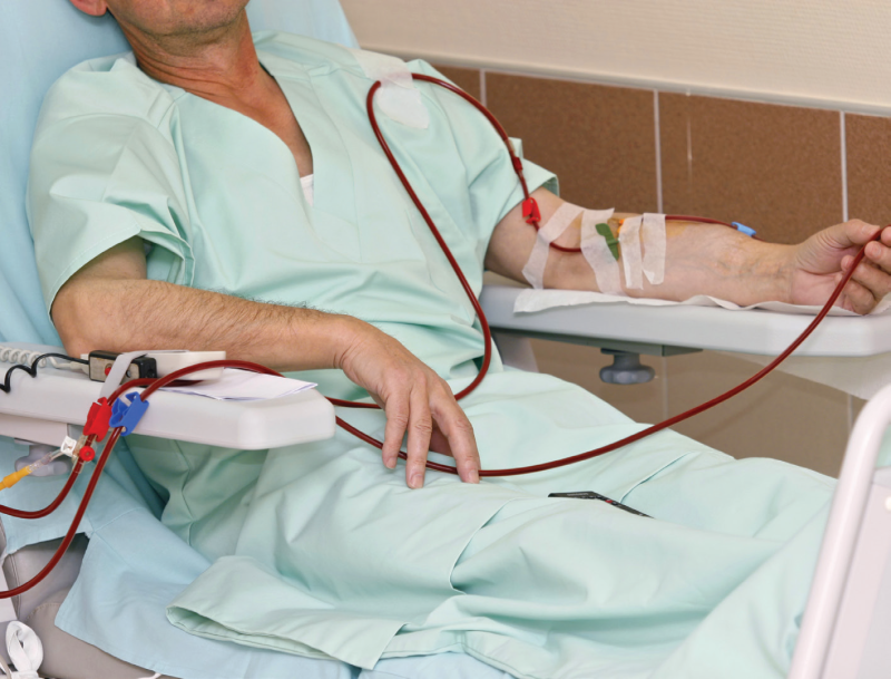Matched pairs of lupus patients with renal disease starting with hemodialysis or peritoneal dialysis.