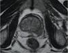 Statin Plus Metformin May Reduce Prostate Cancer Relapse Risk