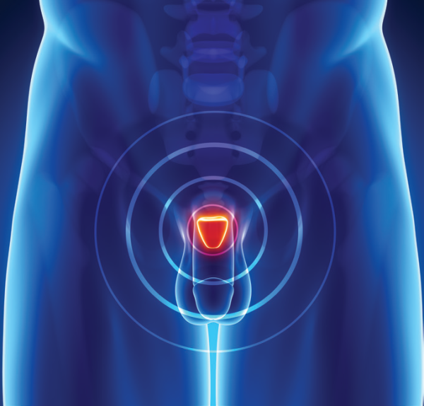 Brachytherapy Offers Favorable Long-Term Prostate Cancer Survival