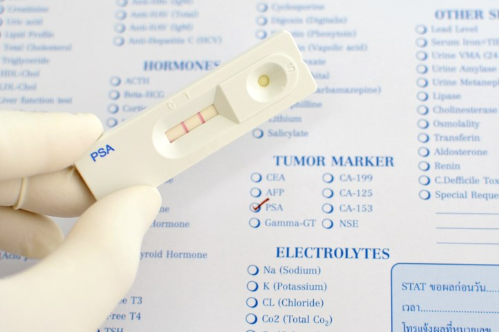 The PLCO trial's conclusion that routine PSA testing does not affect prostate cancer mortality risk could be wrong.