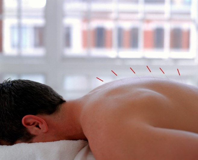 Have you ever recommended acupuncture to a patient?