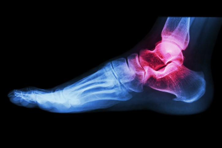 Women with this form of arthritis are more susceptible, researchers say.