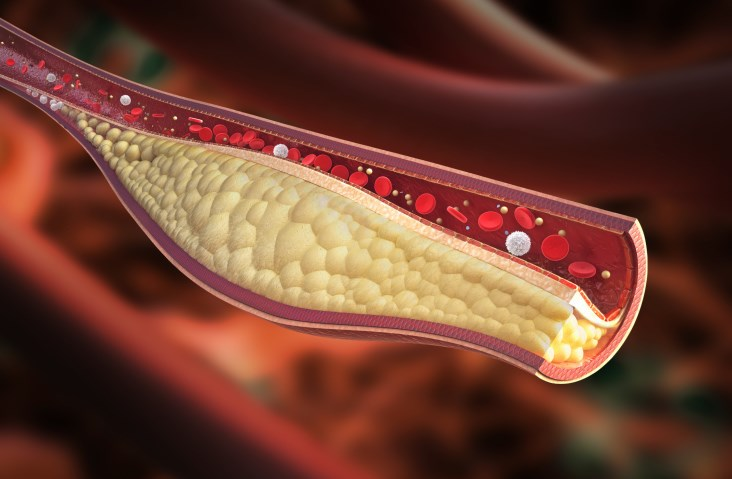 High Cholesterol Linked with Prostate Cancer Recurrence