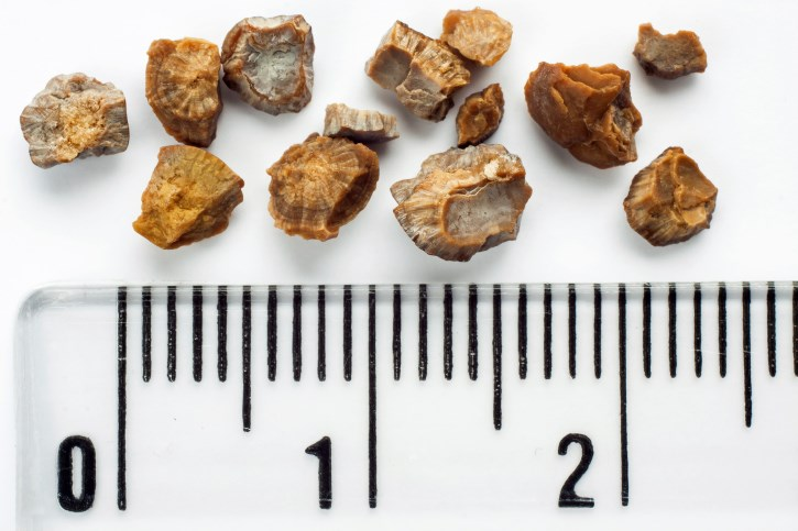 Study demonstrates a benefit in patients with distal ureteric stones 5–10 mm in diameter.