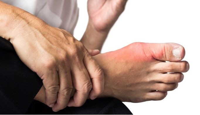 Gout Patients Commonly Develop CKD and Stones
