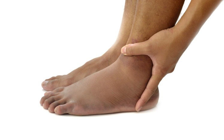 Should Clinicians Always Treat Edema?