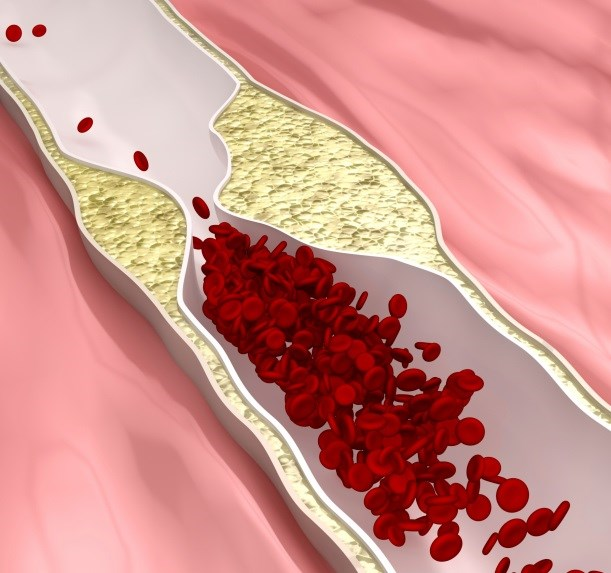 An enzyme that inhibits vascular calcification depends on the vitamin for conversion to its active form.