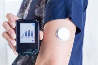 Acetaminophen Boosts CGM Glucose Readings - Renal and Urology News