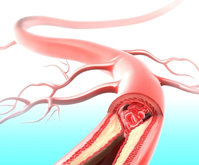 Endovascular Treatment Beats tPA Alone for Stroke Patients