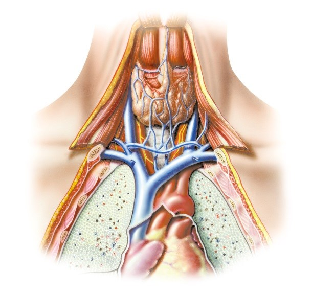 PTH Level Unrelated to Parathyroid Glands' Weight, Blood Flow