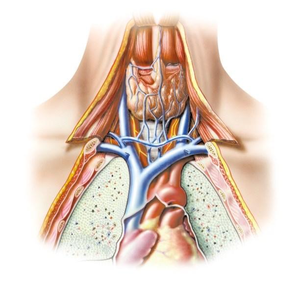 Intraplaque Hemorrhage Common in Type 2 Diabetes