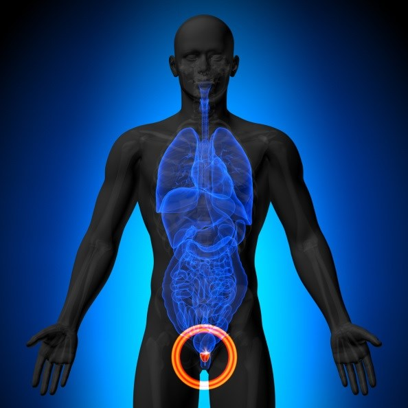 Study Supports Hemiablation HIFU for Prostate Cancer
