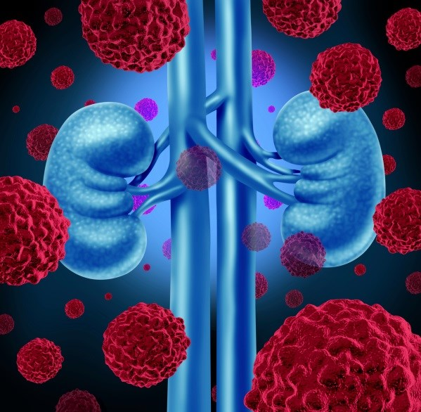 Early Tumor Shrinkage Predicts mRCC Treatment Outcomes