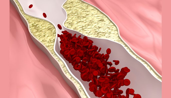 Number of Calcified Arteries Helps Predict CVD Events
