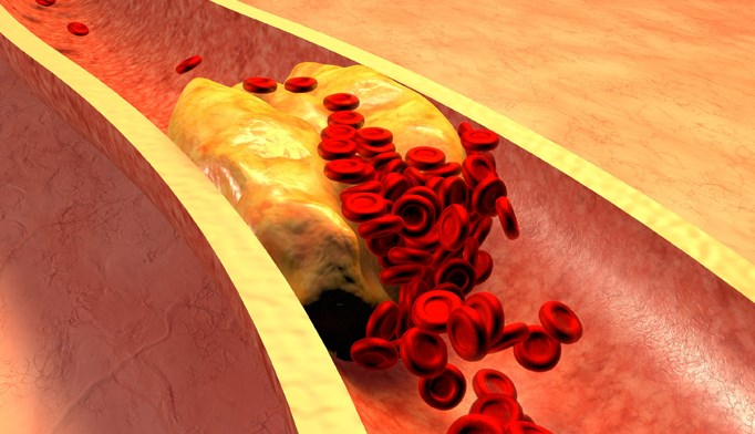 Cardiovascular disease risk is elevated when low HDL-C was accompanied by LDL-C and triglycerides.
