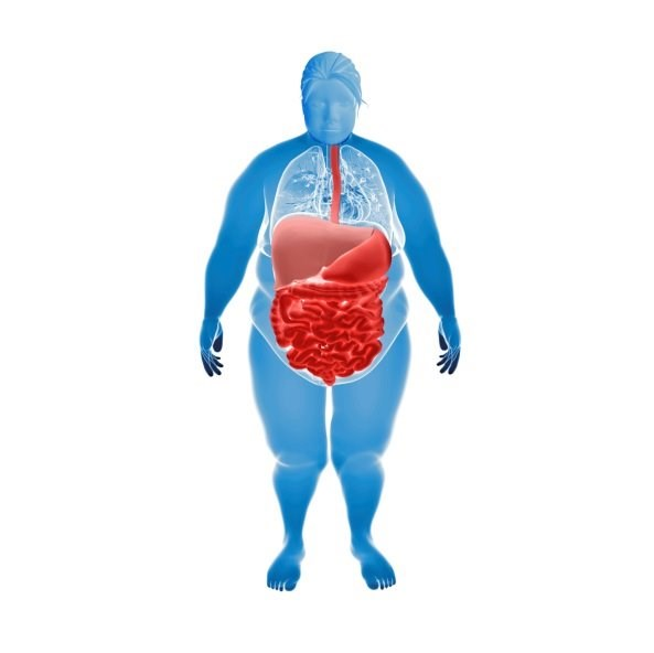 Morbid Obesity Ups Viral Infection Risk After a Kidney Transplant