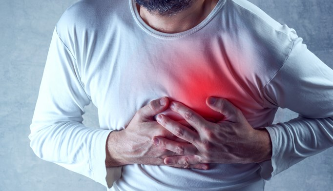 Half of Myocardial Infarctions Are Silent