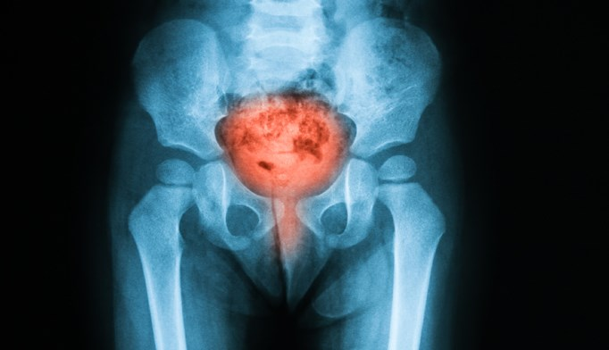 In a study of 189 adult UTI patients who underwent CT scans, investigators identified bacteremia in 40.2%.
