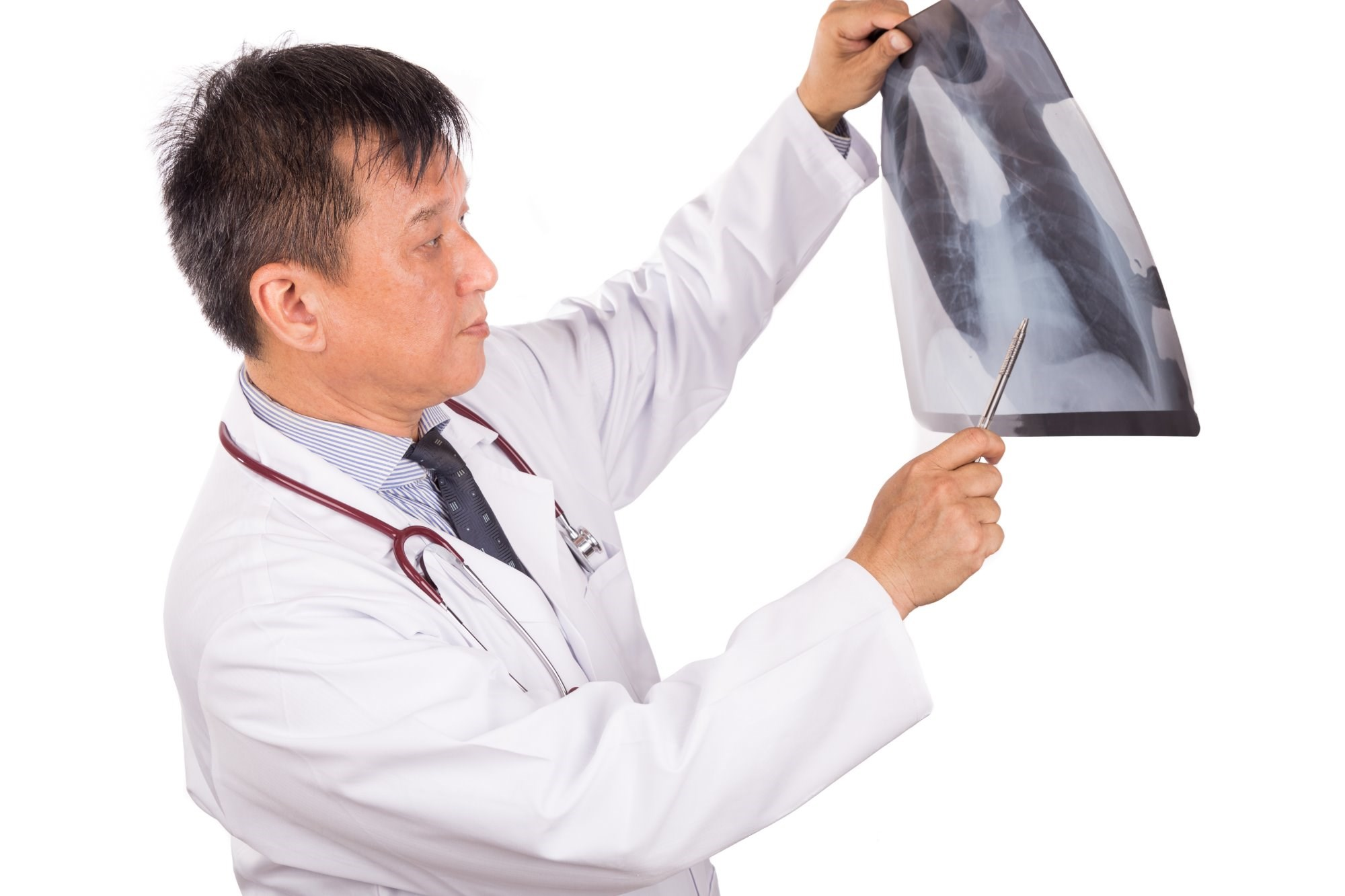 Findings in patients treated for T1a renal cell carcinoma followed with X-ray surveillance.
