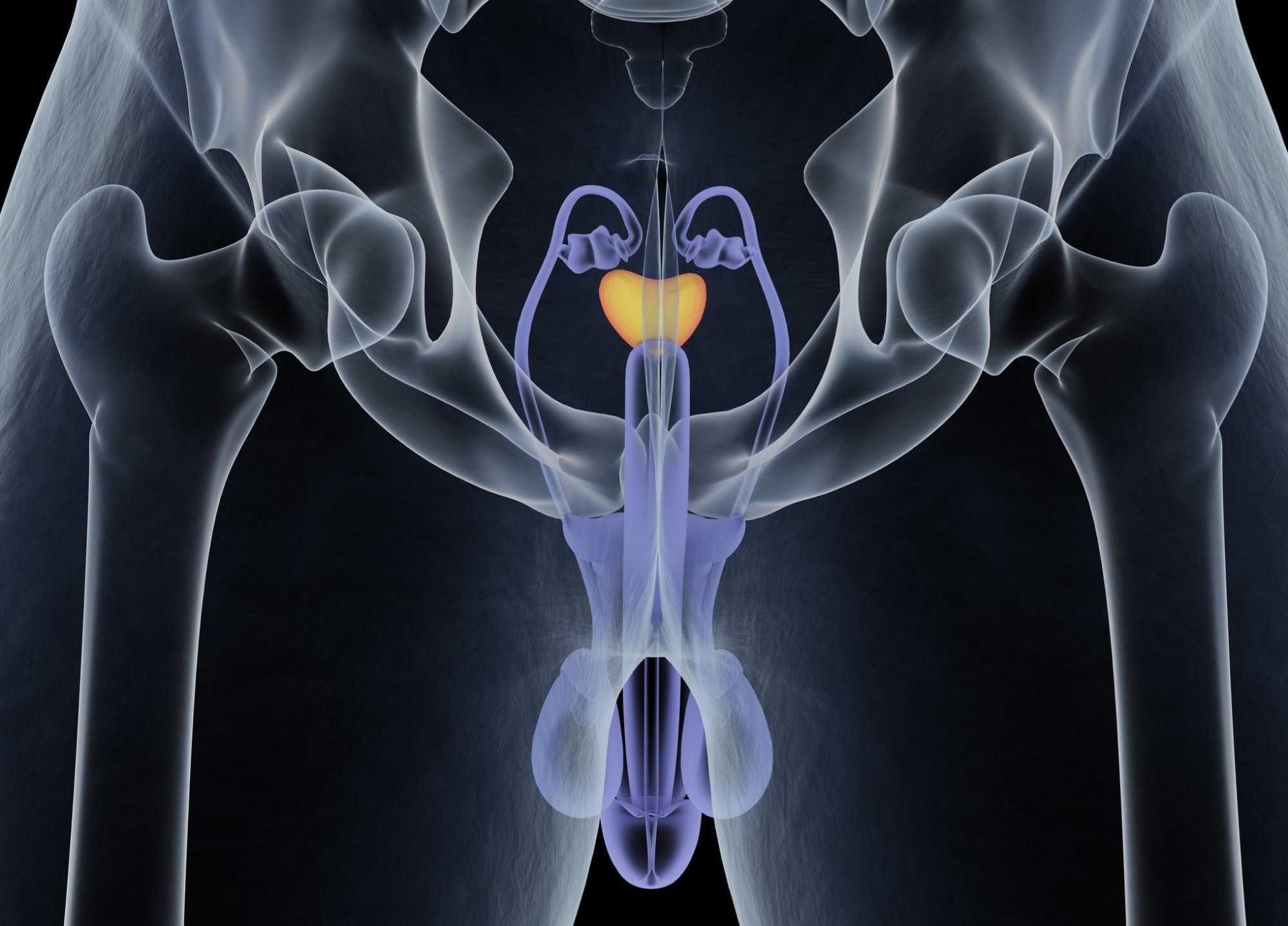 Study tested the combination in men with treatment-naïve prostate cancer and bone metastasis.