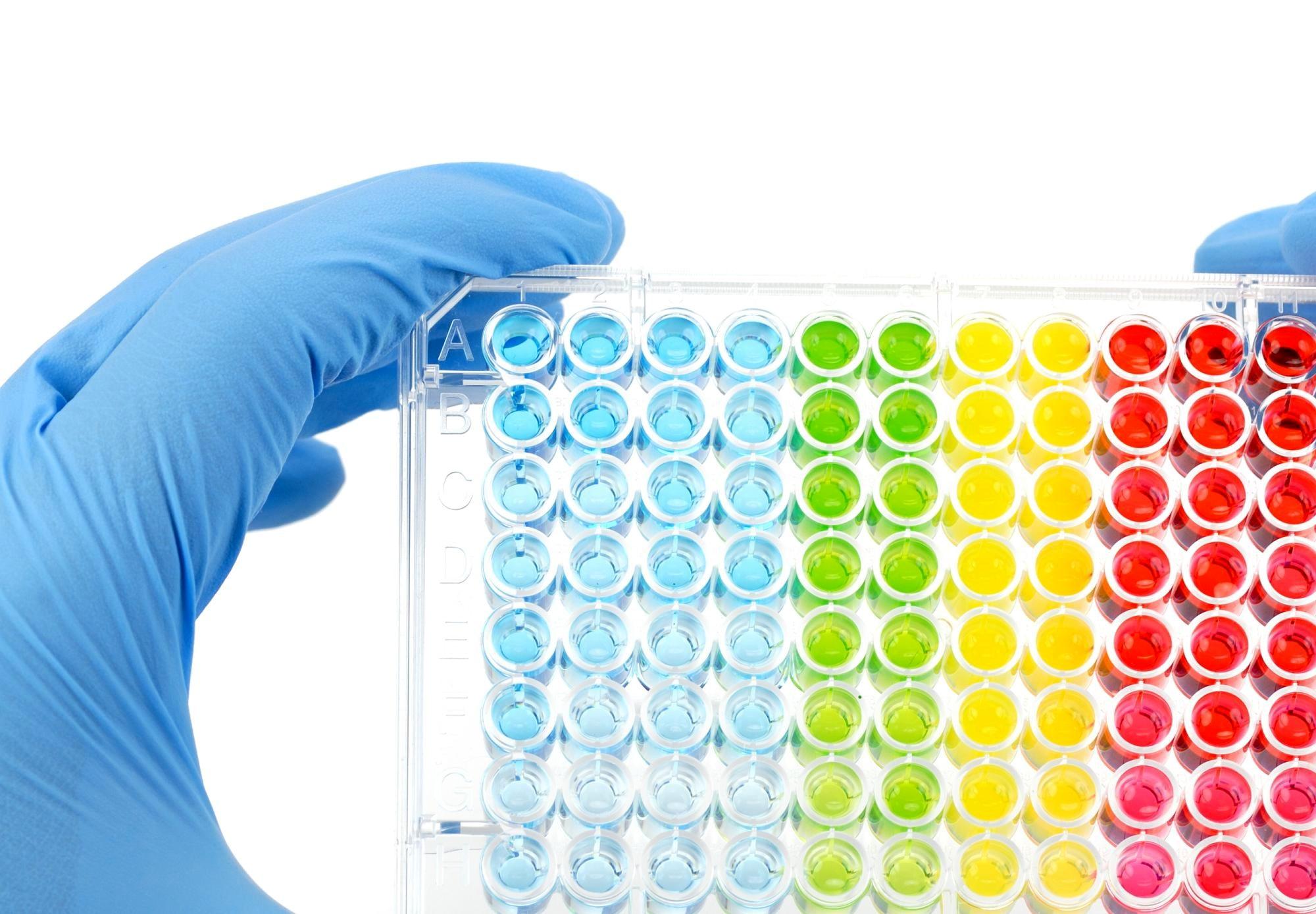 Novel PSA Assay Improves Prostate Cancer Diagnosis