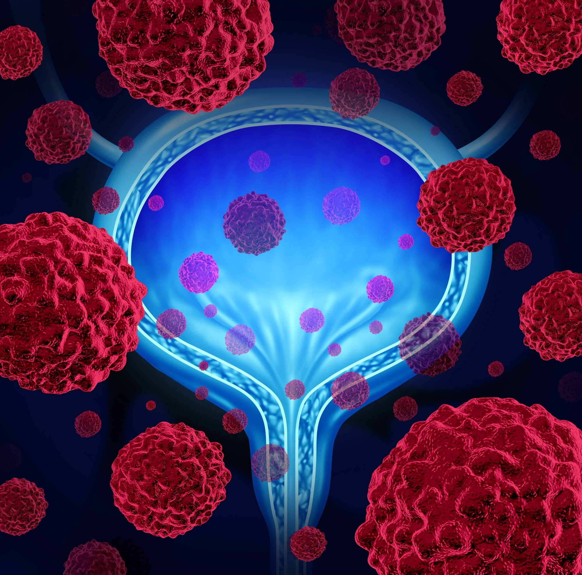 Bladder Cancer Progression Linked to Collagen Changes