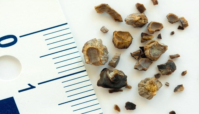 The presence of a ureteral stone, age less than 30 years, and the need for intravenous narcotics in the emergency department were associated with an emergency department revisit.