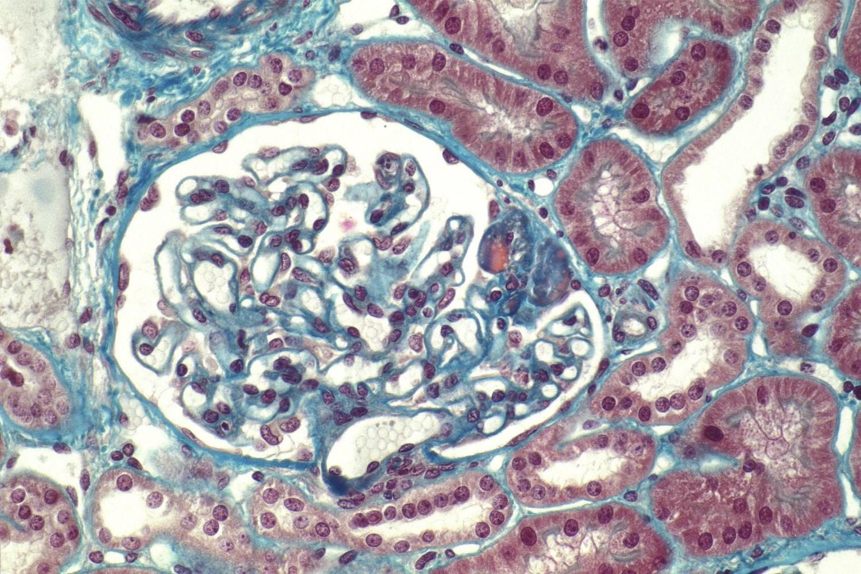 Novel Drug Shows Promise for FSGS
