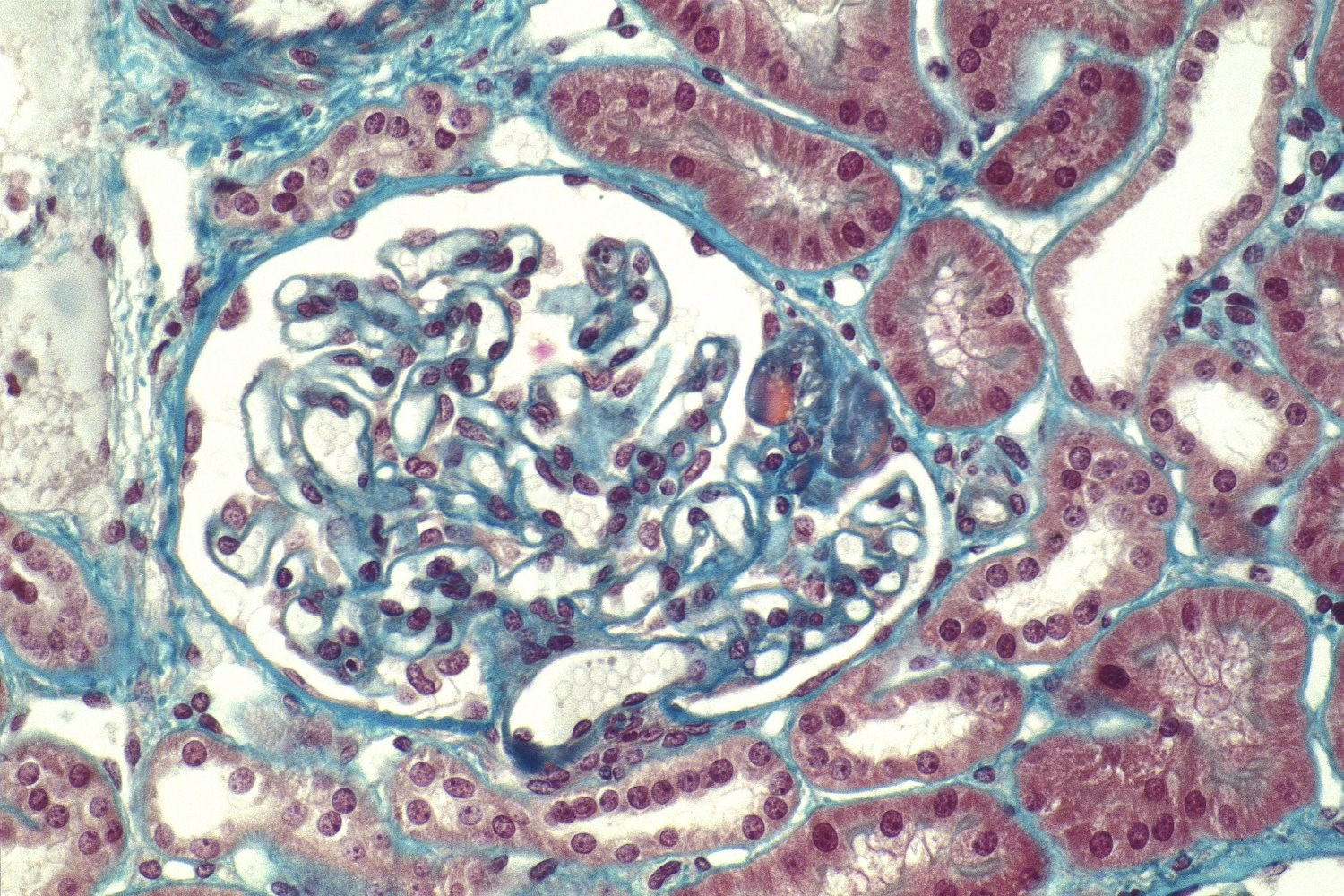 Focal segmental glomerulosclerosis results in fibrosis and scarring in the glomerulus. (c) Prof. J.L. Kemeny  MEDICALIMAGES.COM/ISM