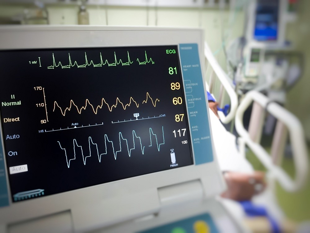 More Patients Hospitalized for Atrial Fibrillation