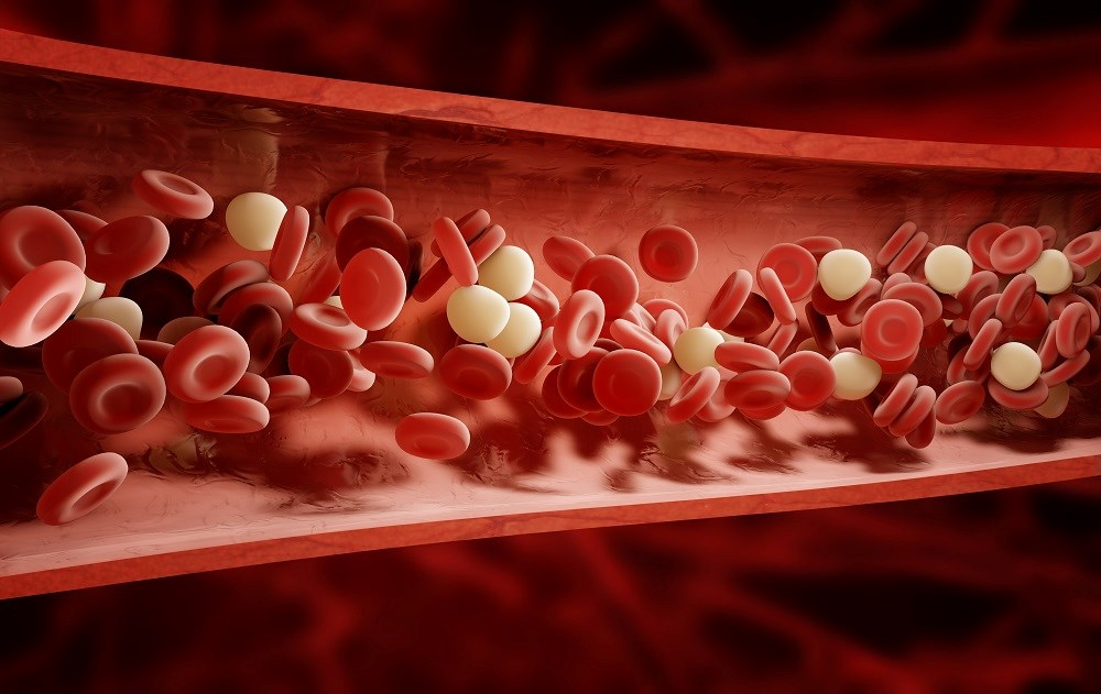 Ferric Citrate Modestly Improves Anemia, Study Confirms