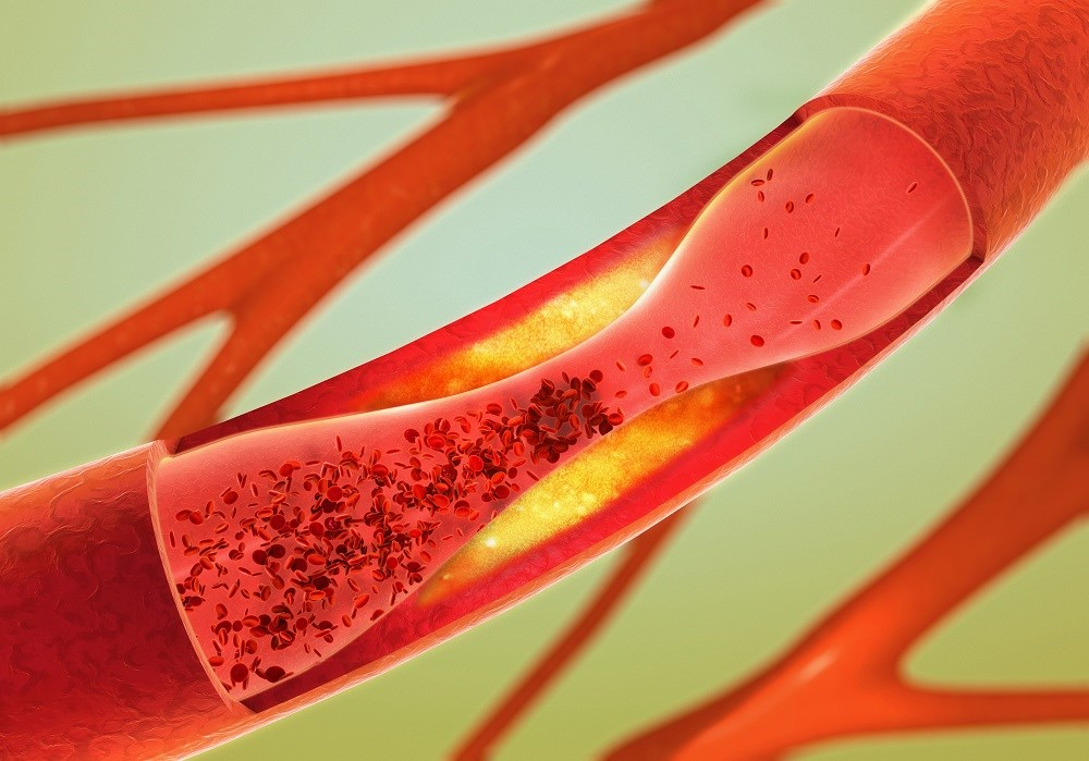 Short-term Arterial Thromboembolism Risk Elevated in Cancer Patients