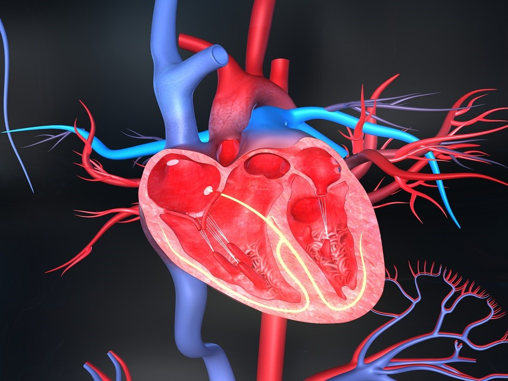 Moderate-severe hypertrophy correlated with a 1.7- and 1.8-fold increased risk of mortality and need for revascularization, respectively.