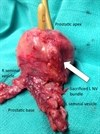 Androgen Ablation With Salvage Radiation During Post-RP Biochemical Failure